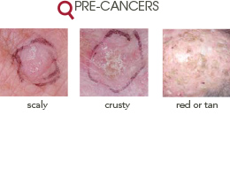 Types Midwest Dermatology